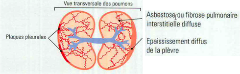Schéma plaques pleurales